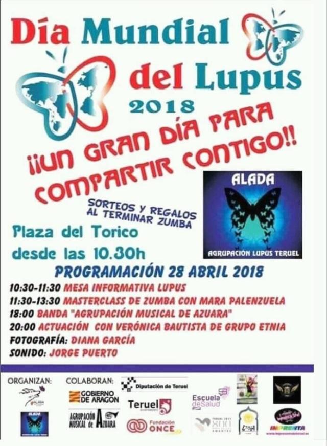 Día Lupus